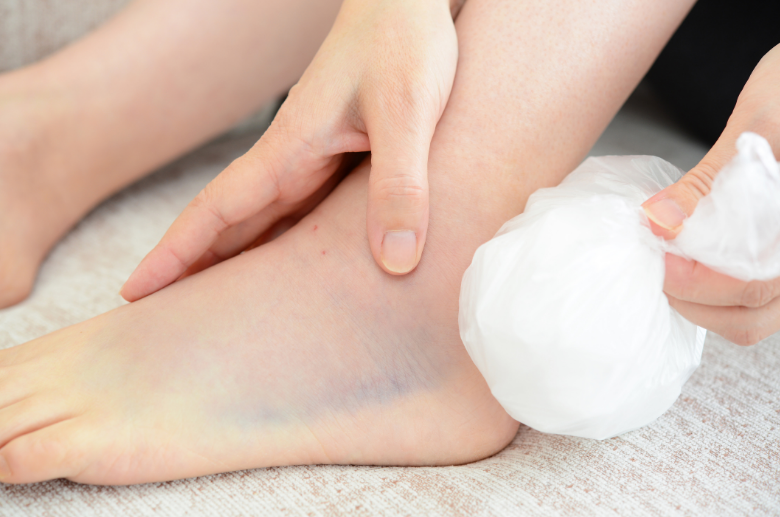 ICE ankle pain treatment for foot at home