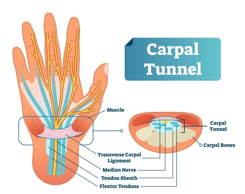 What Is The Carpal Tunnel Syndrome Definition
